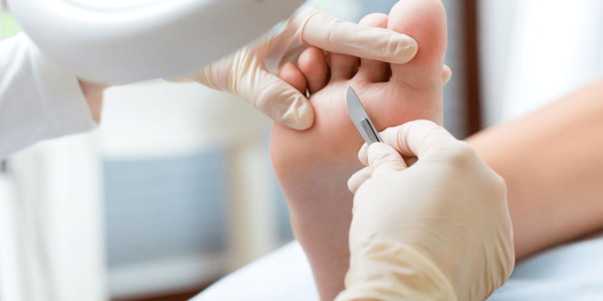 pie diabetico tratamiento y diagnostico