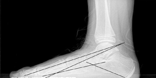 Artrorrisis en el pie plano infantil