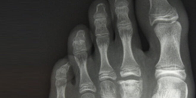 imagen de una radiografia de un pie