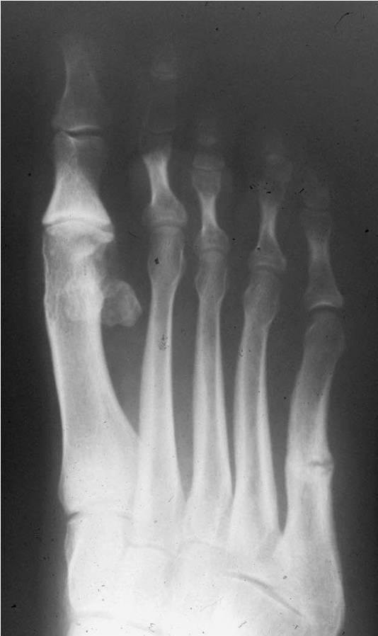 imagen de una radiografia de un pie con fractura de metatarsiano