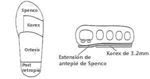 Cuña cinética. Ilustración Doctor Kevin A. Kirby